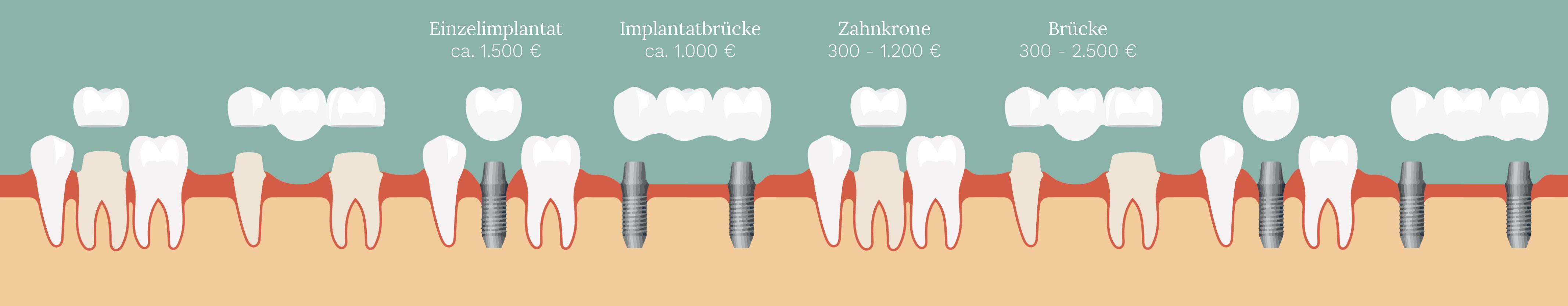 Zahnleiste mit Beschriftung