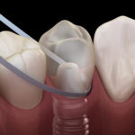 Zahnimplantat Illustration