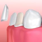 Zahnschalen
