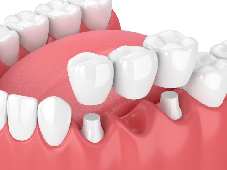 Brücke Zahnersatz