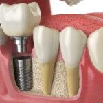 Zahnimplantat im Querschnitt