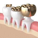 Zahnkronenarten