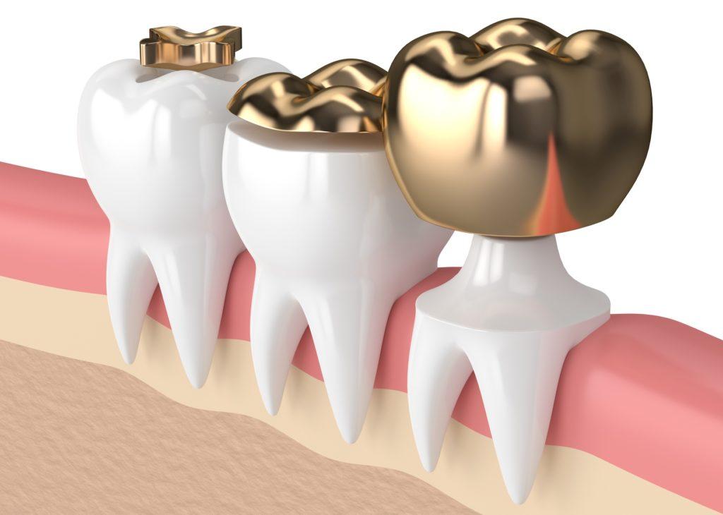 Arten von Zahnkronen